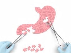 위 모두 잘라낸 위암환자, 치매 위험 30 증가